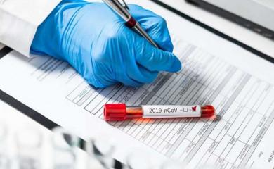 Svakodnevno raste broj zaraženih, stanje zabrinjavajuće